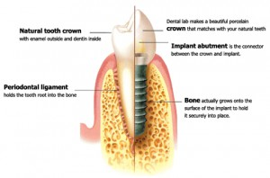 IMPLANT-PICTURE